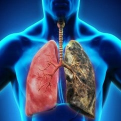 Inhalación del amianto